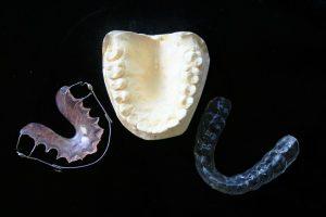Aparat Dentar Mobil