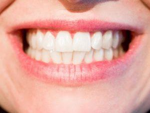 clinica velvet dental