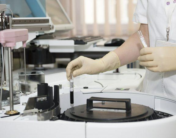 tratament tuberculoza